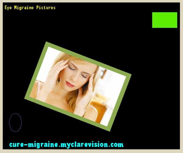 Eye Migraine Pictures 203454 - Cure Migraine