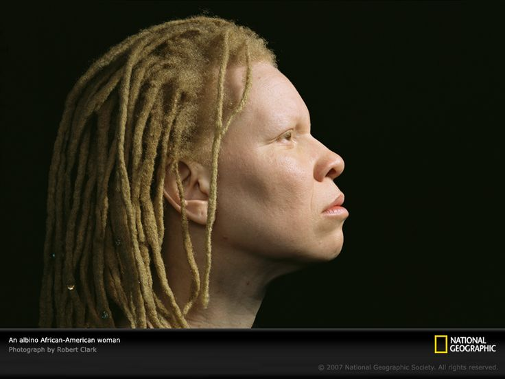 Albinism Is A Genetic Disorder Characterized By A Lack Of