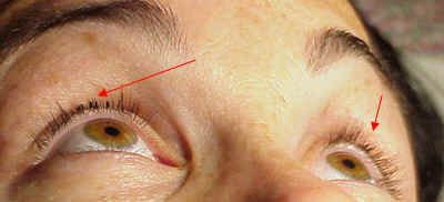 See what cluster, flare, or Honeymoon lashes can do. Yikes! Just say NO! If you want extensions for just a few day fine, but not for long term use. Sure, they are fast and easy to apply but at what cost? A cluster lash must be applied to a cluster of your natural lashes which if worn longer than a few days can cause breakage of that entire cluster of natural lashes or even bald patches. Not recommended! Individual eyelash extensions are the way to go.