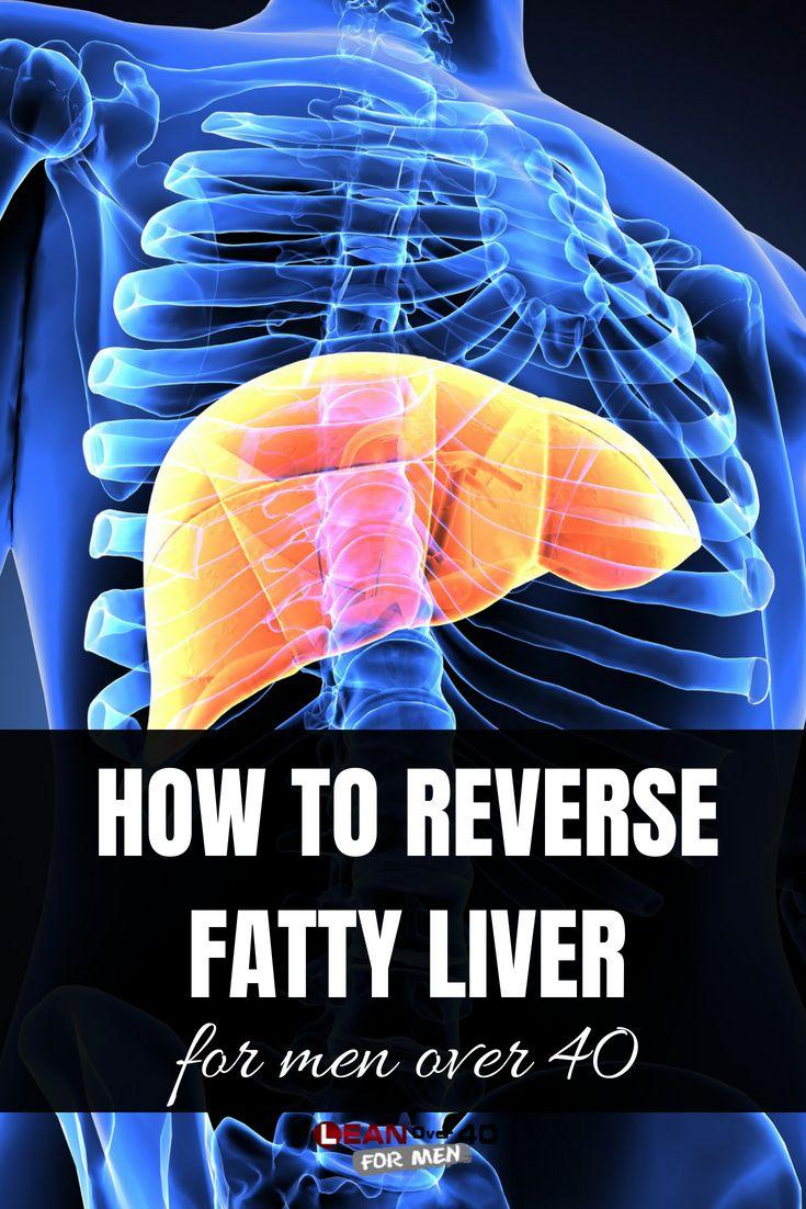 How to reverse fatty liver fatty liver fatty liver diet