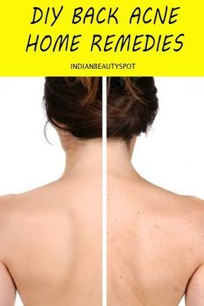 natural treatments-to-cure-back-body-acne: