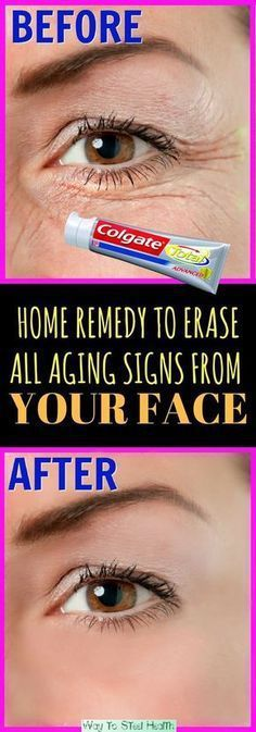 Erase aging signs, wrinkles
