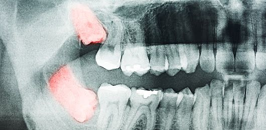Foods To Eat After Wisdom Teeth Extraction Yahoo