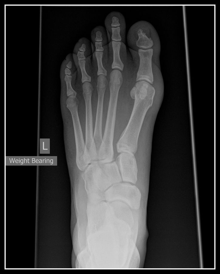 Best Shoes For Foot Fracture Usa