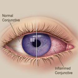 Common Conjunctivitis Treatments