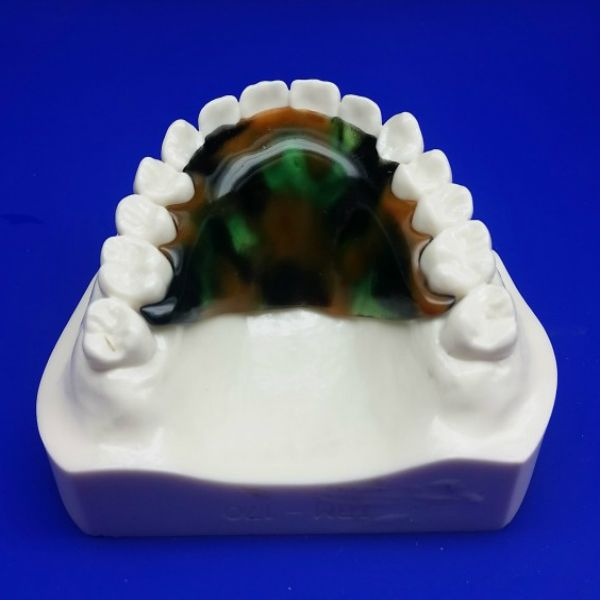 42 best products diy dental impression kit images on pinterest buy diy dentistry kit false teeth kits and home dental kits in addition to cheap clear teeth retainers and imprint kits on affordable pricee at arkansas solutioingenieria Image collections