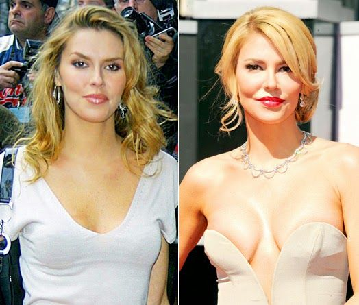 Celebrity Plastic Surgery Photos: Brandi Glanville Plastic Surgery Before and After ...