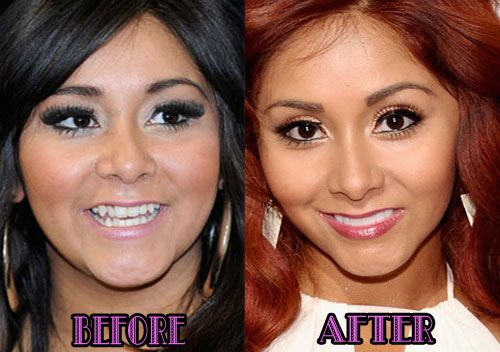 Snooki Nose Job Before And After Photos Celebrity