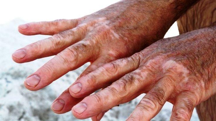A cöliákiához bőrbetegségek is társulhatnak