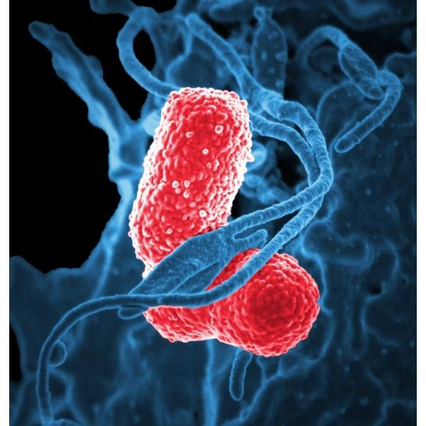 The growing threat of antibiotic resistance means we should all be wary of Klebsiella pneumoniae bacteria and take precautions to avoid contracting an infection