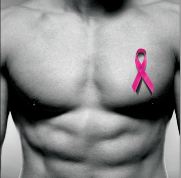 Is breast cancer fatal?