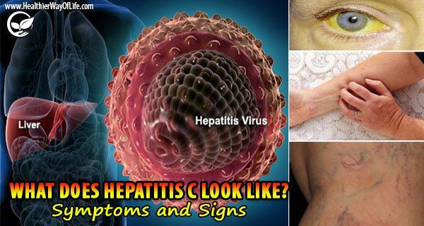 Hepatitis C is a liver infection caused by the Hepatitis C virus (HCV).  HCV is spread when you come in contact with blood contaminated with the virus.  130–150 million people globally have chronic hepatitis C infection.