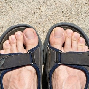 Try Vicks VapoRub on Infected Toenails to Get Them Ready for Summer Sandals - The People's Pharmacy®