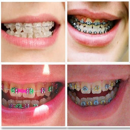 tutorial how to make fake braces that look real