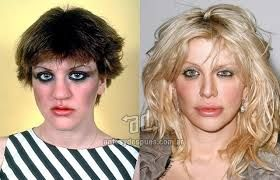 25 Celebrity Nose Jobs (rhinoplasty) before and after pics courtney loves rhinoplasty