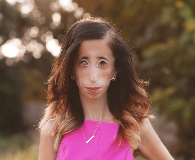 Lizzie Velasquez On The Lessons She Learnt From Online Trolls