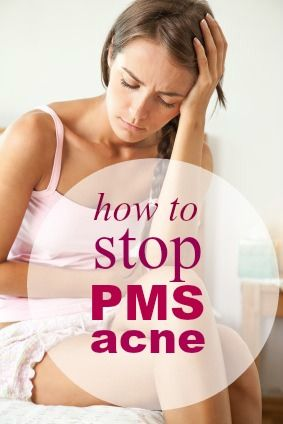 PMS Acne: Your guide to maintaining clear skin during your period. Click the image to learn more!