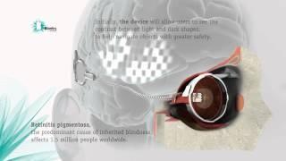 """Bionisch oog laat blinde vrouw weer zien  Een primeur: voor het eerst hebben wetenschappers een blinde vrouw met behulp van een bionisch oog het zicht een beetje teruggegeven. De vrouw kan dankzij het implantaat licht zien en vormen onderscheiden.     """"Plotseling zag ik een kleine lichtflits,"""" vertelt Dianne Ashworth, de patiënte waarbij het bionische oog werd geïmplanteerd."""