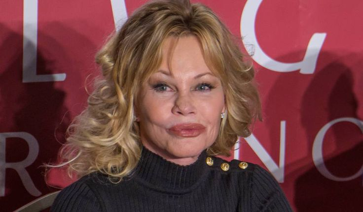 Melanie Griffith Chose To Fight Time With Anti Aging Treatments And Plastic Surgery Melanie Griffith Melanie Griffith Plastic Surgery Anti Aging Treatments