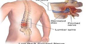 Si sufres de dolor de espalda nosotros te recomendamos estos ejercicios sumamente practicos para que puedas disfrutar de una movilidad excelente