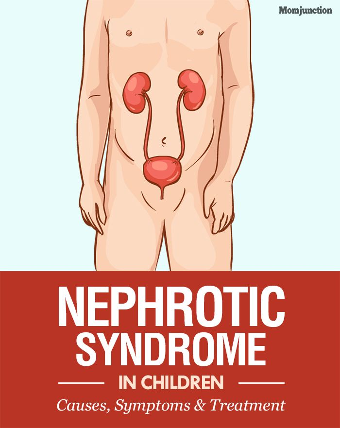 Nephrotic Syndrome In Children - Causes, Symptoms & Treatment