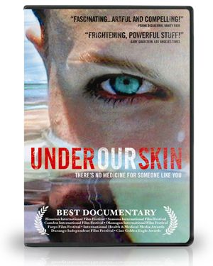 Under Our Skin: The Untold Story of Lyme Disease -> Watch for free!