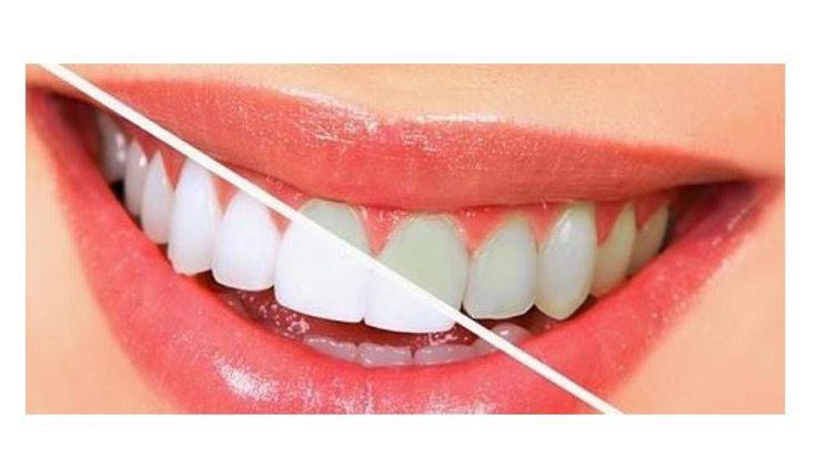 自然に歯を白くする食品選