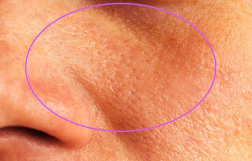 Aufgepasst: Mit diesen natürlichen Zutaten kannst Du deine Gesichtsporen entfernen!