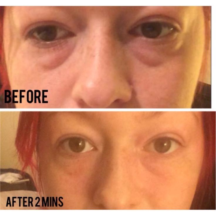 """Before and after with the """"instantly ageless"""" Results within 2 MINUTES!! Order yours today from http://beautyinskin.jeunesseglobal.com/"""