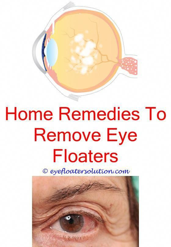 Over masturbation causing eye floaters