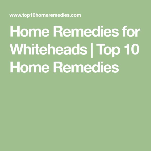 Home Remedies for Whiteheads | Top 10 Home Remedies