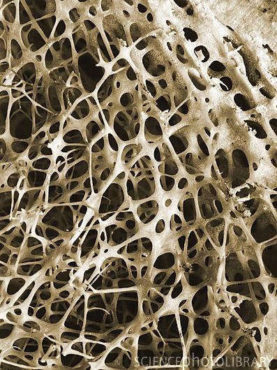 Micrografia eletrônica de varredura do esponjoso osso da canela humana. O tecido ósseo é ou compacto ou esponjoso. O osso compacto torna-se geralmente no exterior do osso, enquanto o osso esponjoso, se encontra no interior. Osso trabecular é caracterizado por um arranjo em favo de mel de trabéculas. Estas estruturas ajudar a fornecer apoio e força. Os espaços dentro deste tecido normalmente contêm de medula óssea, sangue formando uma substância.
