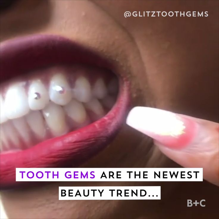 Tooth gems are the latest throwback '90s beauty trend. Watch this video to get inspiration on how to incorporate the look into your own style.