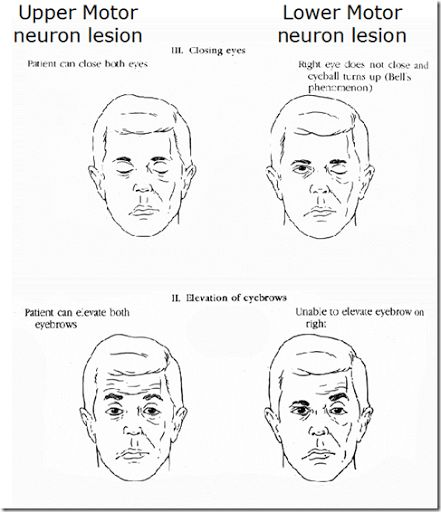 Upper Motor Neuron Lesion vs Lower Motor Neuron Lesion