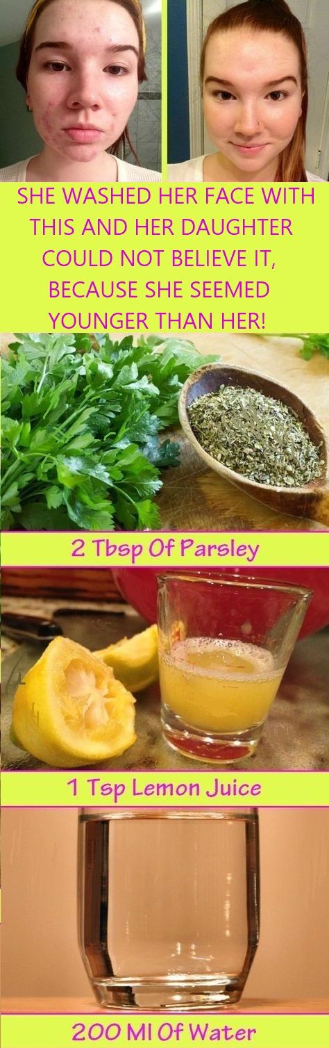This homemade lotion made of parsley leaves and lemon (or apple cider vinegar) will help you to whiten your skin and clean your face from dark spots and freckles and your skin will receive a healthy shine! Skincare   Clean face   Face Care   #homemadelotion #cleanface #skincare #facecare