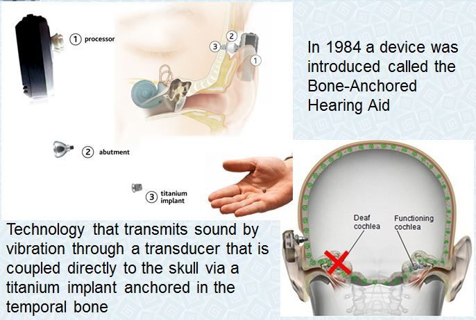 Abone-anchored hearing aid(BAHA)orbone-anchored hearing device,is a type ofhearing aidbased onbone conduction.Candidates for bone anchored amplification options include children with outer and/or middle ear deformities causing significant longstanding conductive hearing loss or children who have singled-sided deafness. How it works to help people hear better:Bone-anchored hearing aids use a surgically implantedabutmentto transmit sound by directconduction through …