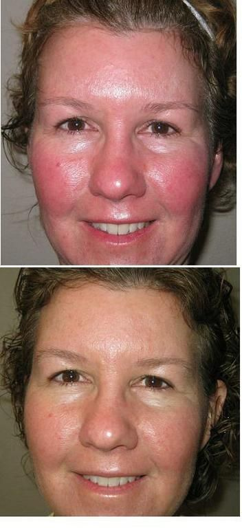 Pictures say a thousand words. Rodan and Fields Soothe regimen after 60 days! One of my favs!