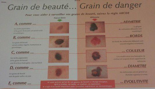 Prévention cancer de la peau: Grain de beauté.. grain de danger