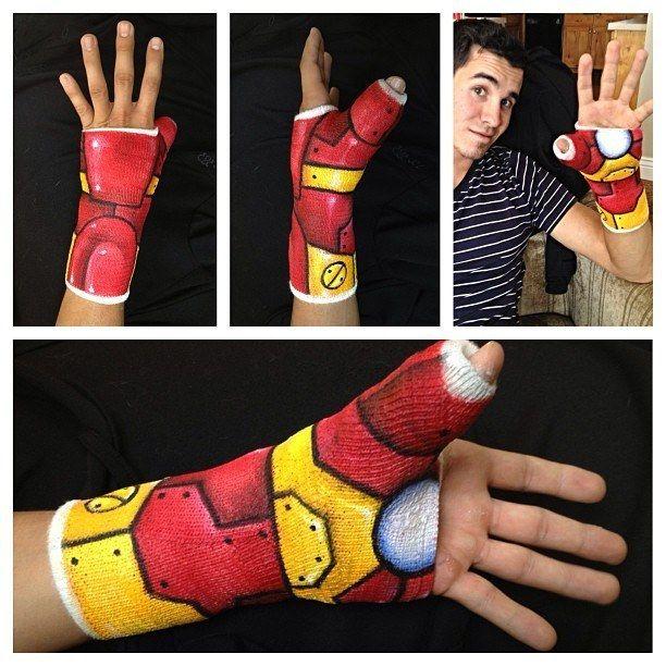 Las mejores ideas sobre yeso de brazo roto en