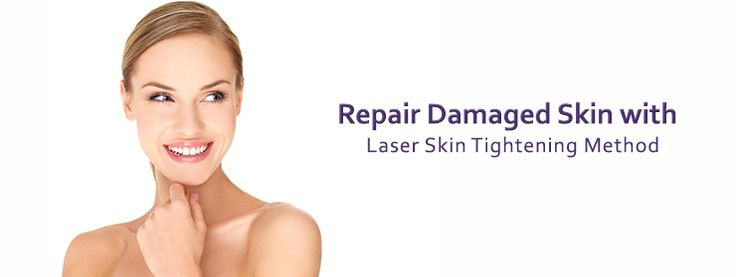 Laser Skin Tightening Systems
