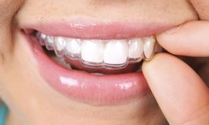 Groupon - $ 49 for $1,200 Towards a Full Invisalign Treatment at Wake Forest Dental Arts in Wake Forest Dental Arts. Groupon deal price: $49