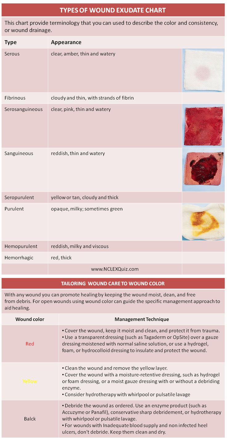 Types of wound exudate cheat sheet cheat sheets charts for Types of drainage