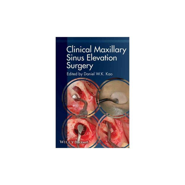 Clinical Maxillary Sinus Elevation Surge (Paperback)