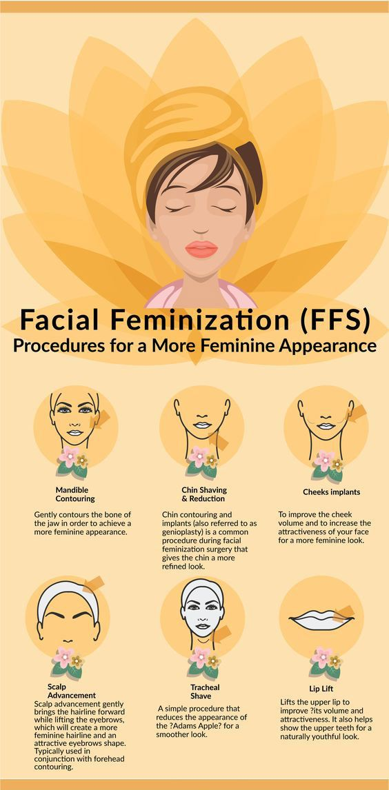 Facial feminization Surgery Tips and Advice FFS Guide.  Read More: http://www.transgenderhub.com/facts-ffs-transgender-cosmetic-surgery/