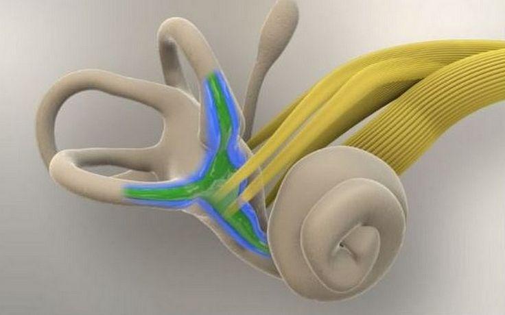 Enfermedad de #Ménière, esto es lo que ocurre a nivel del #oído interno.