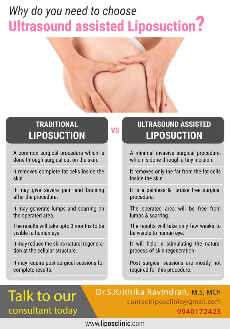 Why do you need to choose Ultrasound assisted Liposuction?  Talk to our consultant today - Dr S Krithika Ravindran (+91) 9940-172-423 Visit: www.liposclinic.com  #LiposCosmeticClinic #LiposClinic #PlasticSurgery #CosmeticSurgery #SurgeonInChennai #Chennai #TreatmentinChennai #LiposuctionProcedure #Transformation #Fatloss #BeautyTreatment #WeightReduction #Liposuction #LiposuctionTreatment #India #MenPlasticSurgery #obesity #obesitysurvivor #myweightlossjourney #inspiration #healthy #health…