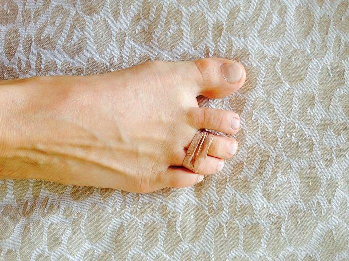 Evitar dores ao usar salto alto = Passe o ESPARADRAPO em volta do 3º e 4º dedos (contando a partir do dedão) juntando-os!!