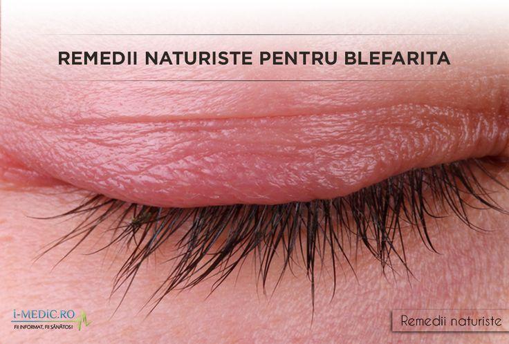 Prin termenul de blefarita se intelege inflamatia pleoapelor, in special a marginilor libere palpebrale, superioare si inferioare. http://www.i-medic.ro/remedii/remedii-naturiste-pentru-blefarita