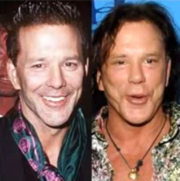 Actor Mickey Rourke is one of the few actors to admit to having plastic surgery. He said he went to the