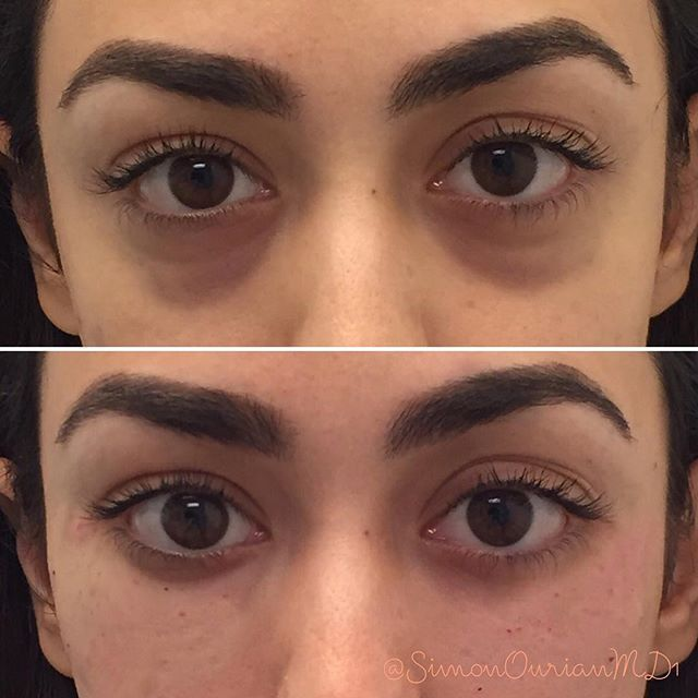 هذا Tag someone who wishes to have Nonsurgical Removal of
